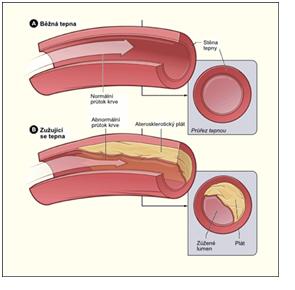 38.atereskleroza