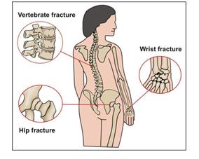 45.osteoporoza